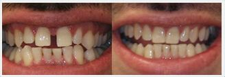Acceledent Before and After Photos: patient 2
