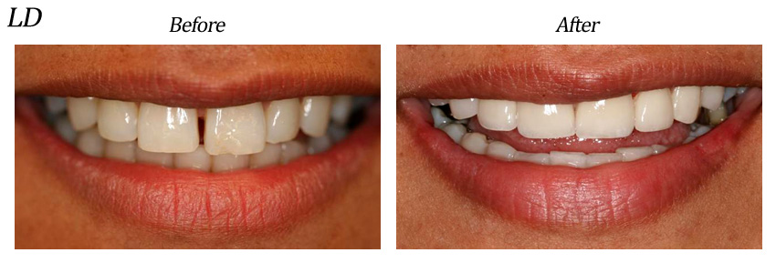 Gap Teeth Before And After. Closing Gapped Teeth