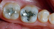 Tooth-Colored White Fillings - patient teeth