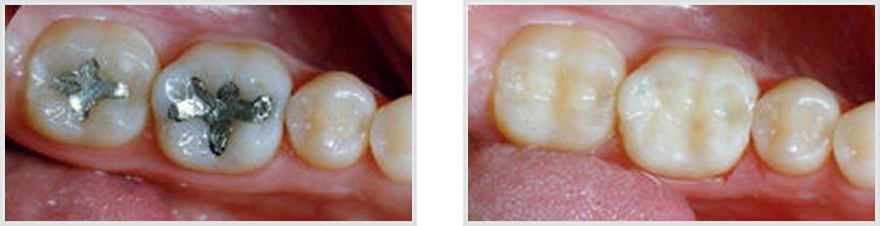 Patient 2 - This 14 year old came home from a dentist appointment at another office with his first 2 cavities filled.