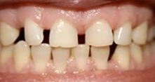 Closing Gapped Teeth Before Patient 8