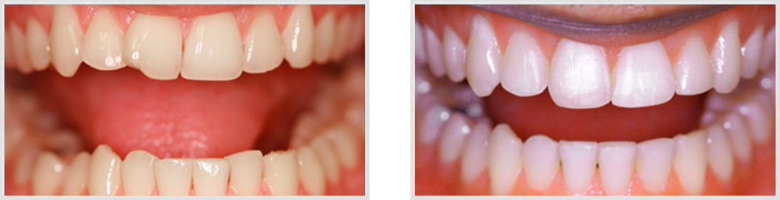 Ny Zoom Teeth Whitening Before After Whiten Stained Teeth