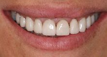 Veneers After Patient 5