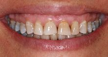 Veneers Before Patient 5