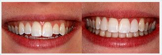 Gum Diseases in New York. Before & After Treatment Photos: patient 2