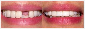 Dental Implants in NYC. Before & After Treatment Photos: patient 1
