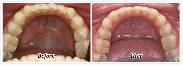 gallery before and after invisalign