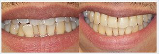 Invisalign. Before & After Treatment Photos: Patient 2
