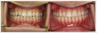 Gum Diseases in New York. Before & After Treatment Photos: patient 1