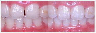 Invisalign. Before & After Treatment Photos: Patient 1