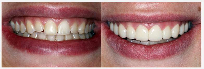 Before and After Photos - SMILE GALLERY