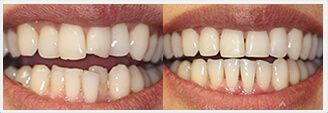 Elite Preferred Provider for Invisalign. Before & After Treatment Photos: patient 1