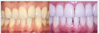 Candidates for Invisalign Before & After Treatment Photos - patient 2
