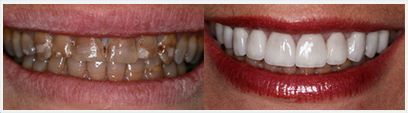 Teeth Cleaning Before & After Treatment Photos: smile