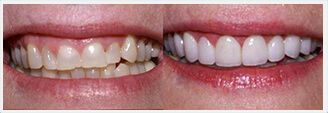 Veneers Before & After Treatment Photos - patient 2