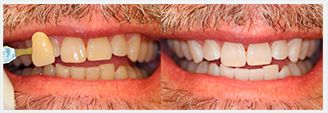 Teeth Whitening FAQs. Before and After Photos - patient 1