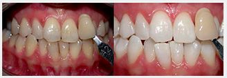 EZ WHITE™ PRO FAQS - Before and After Treatment photos: patient 2